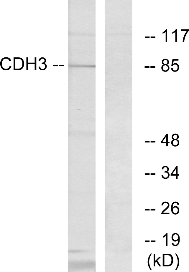 CDH3 Antibody (OAAF02855) in K562 cells using Western Blot