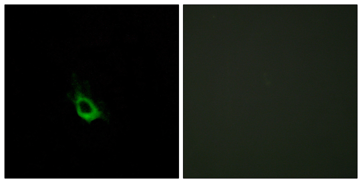 CARD10 Antibody (OAAF02864) in HeLa cells using Immunofluorescence