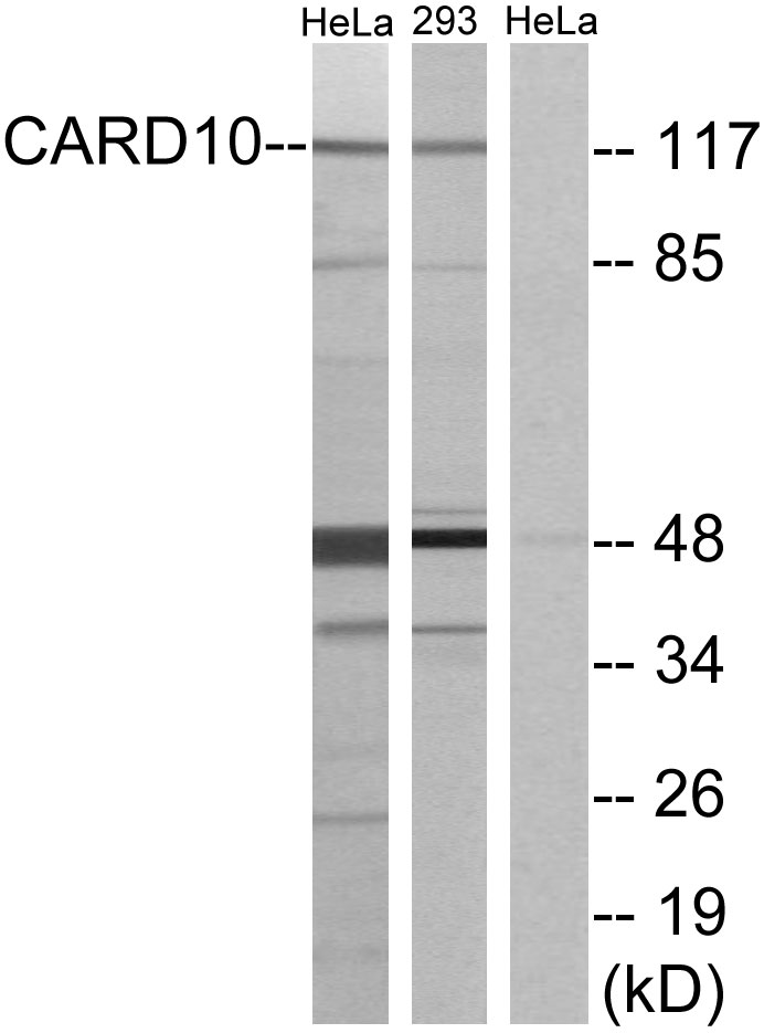 CARD10 Antibody (OAAF02864) in HeLa, 293 cells using Western Blot