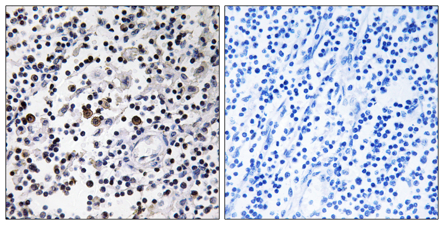 CD302 Antibody (OAAF02873) in Human lymph node cells using Immunohistochemistry