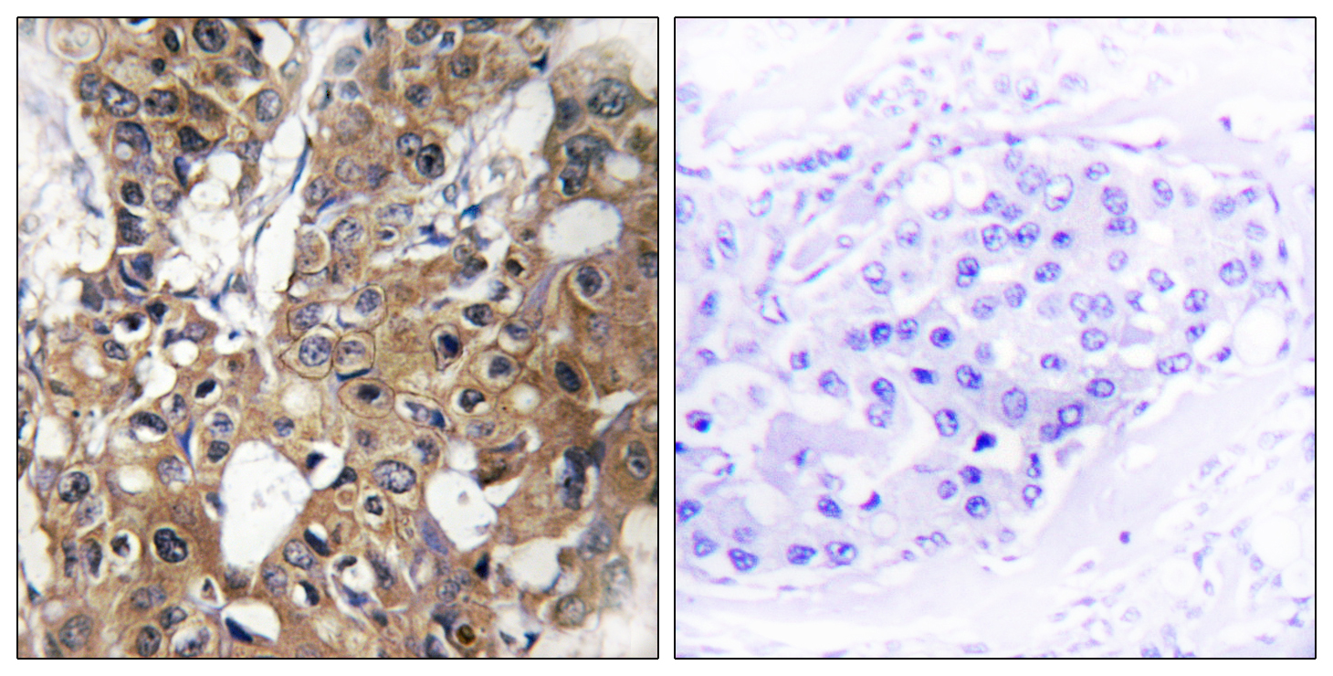 CD9 Antibody (OAAF02875) in Human breast carcinoma cells using Immunohistochemistry