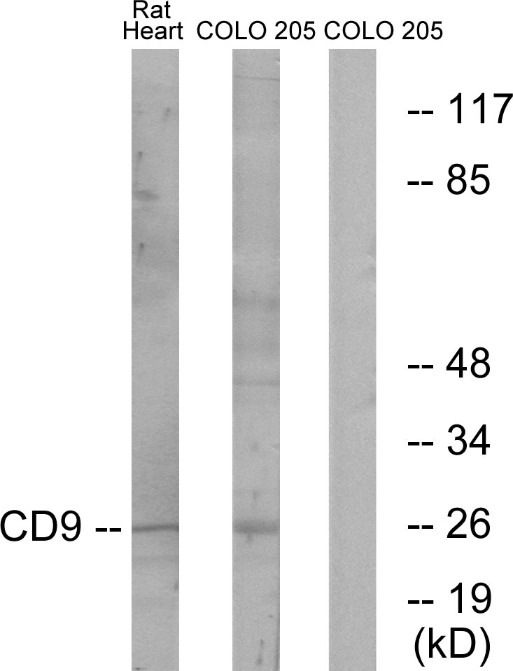 CD9 Antibody (OAAF02875) in Rat heart, COLO cells using Western Blot