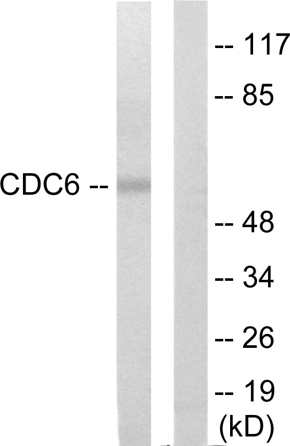 CDC6 Antibody (OAAF02881) in K562 cells using Western Blot