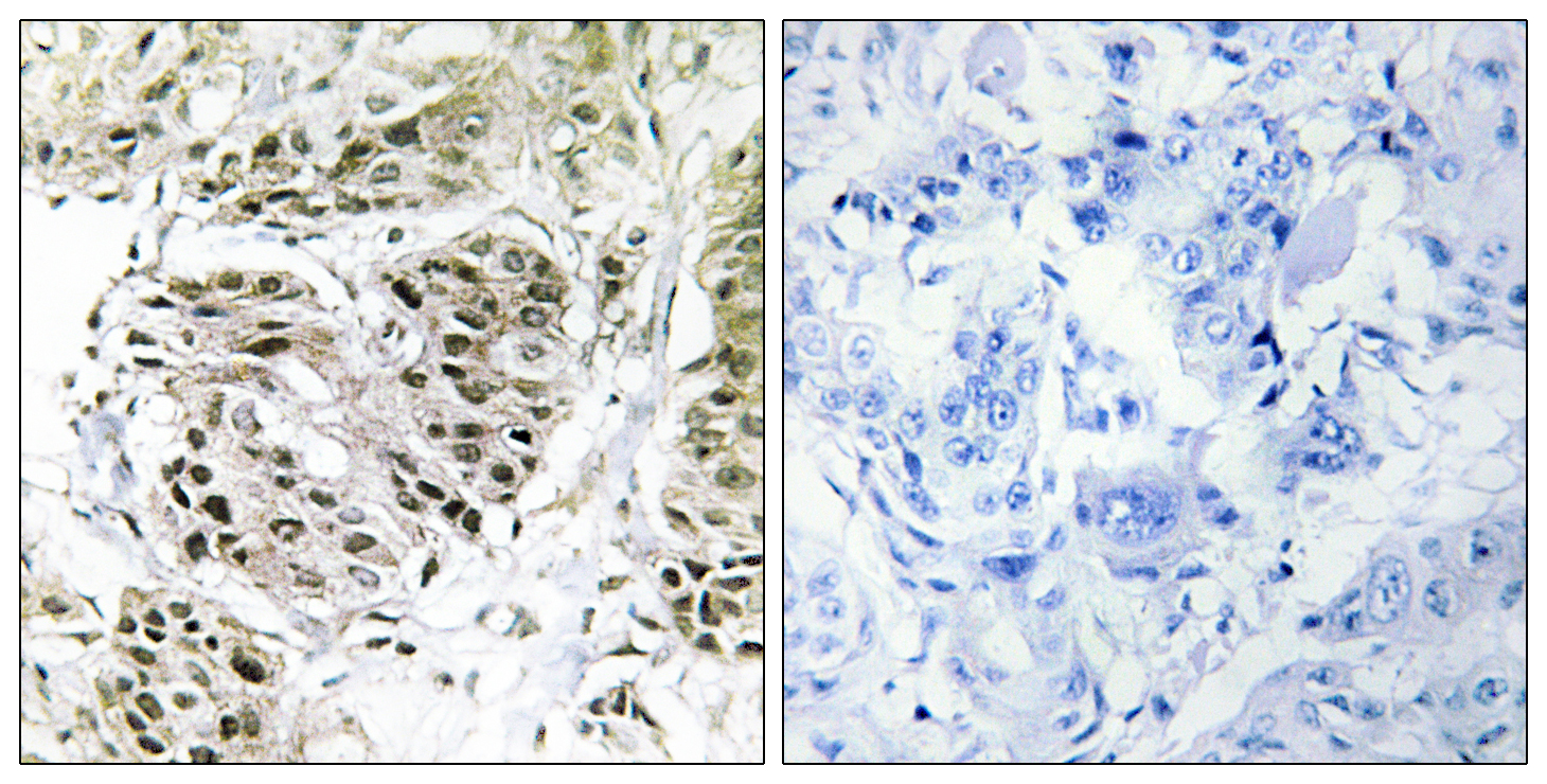 CENPA Antibody (OAAF02892) in Human breast carcinoma cells using Immunohistochemistry