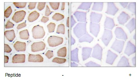 CFLAR Antibody (OAAF02893) in Human skeletal muscle cells using Immunohistochemistry