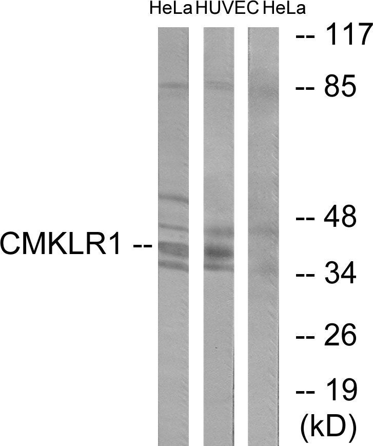 CMKLR1 Antibody (OAAF02897) in HepG2, HeLa, 293 cells using Western Blot