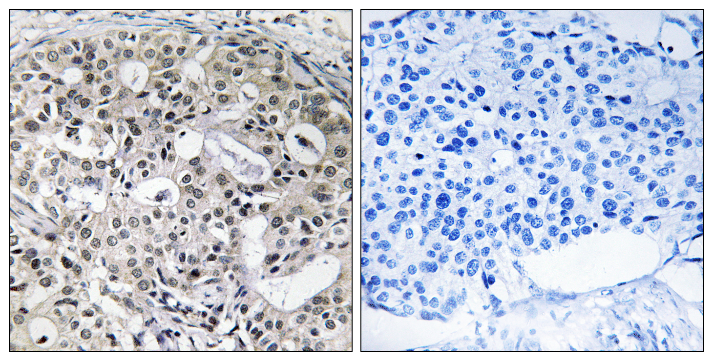 CNTD2 Antibody (OAAF02898) in Human breast carcinoma cells using Immunohistochemistry