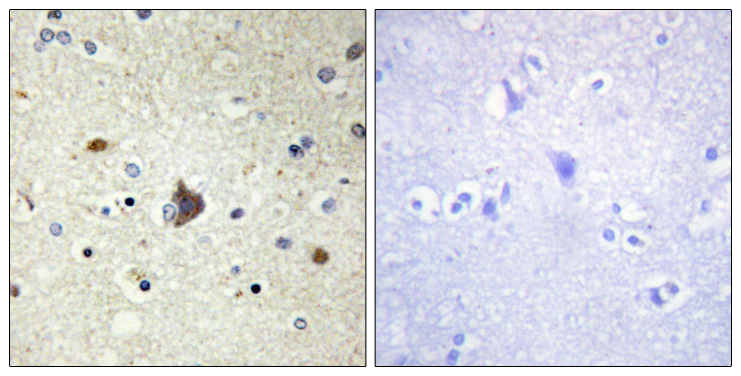 COL4A3 Antibody (OAAF02901) in Human brain cells using Immunohistochemistry