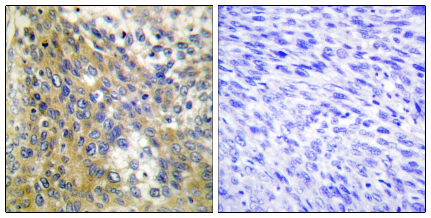 COL4A6 Antibody (OAAF02904) in Human cervix carcinoma cells using Immunohistochemistry