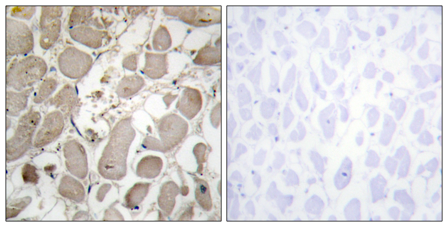 COL5A1 Antibody (OAAF02905) in Human heart cells using Immunohistochemistry