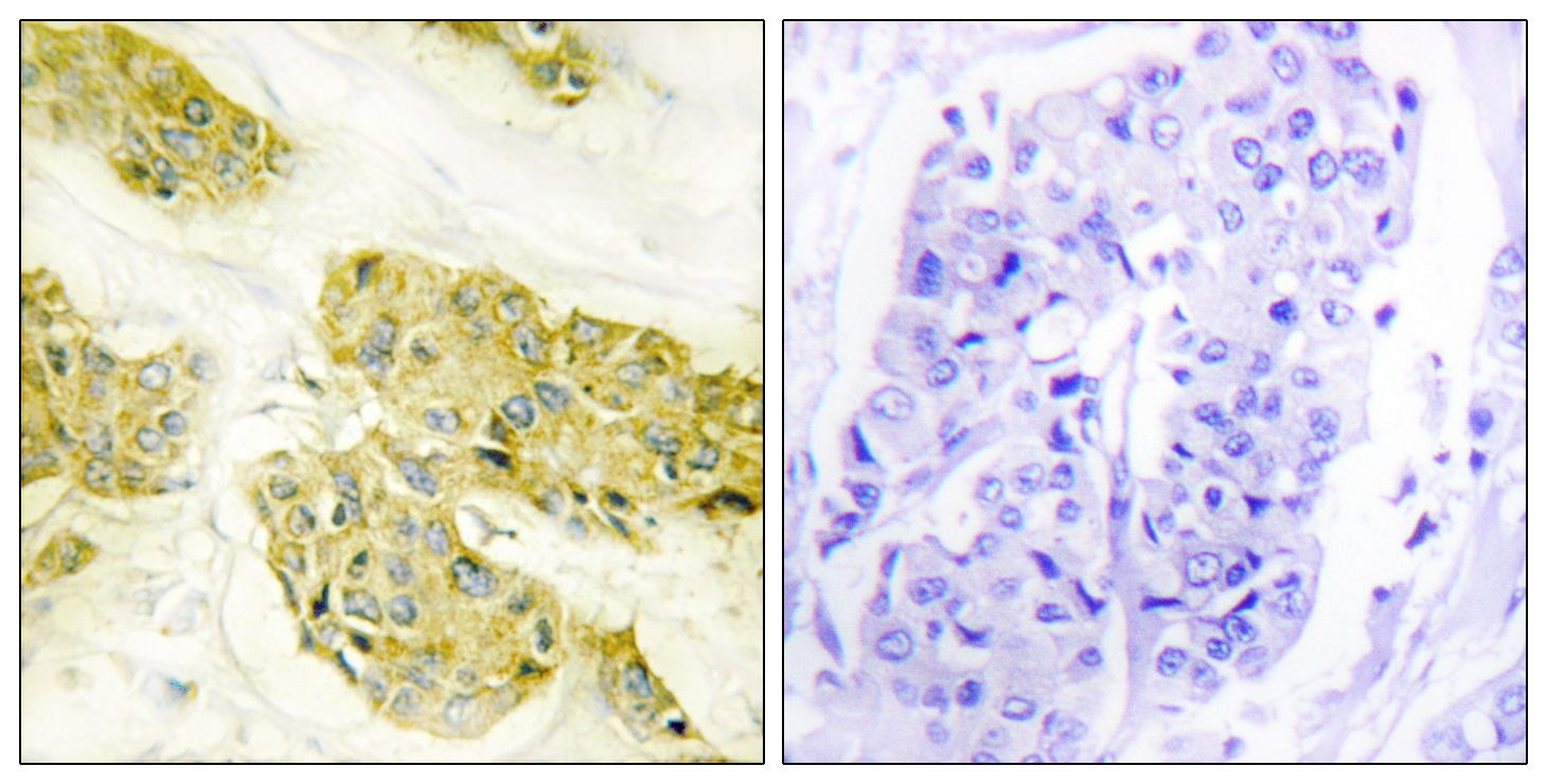 COL5A3 Antibody (OAAF02907) in Human breast carcinoma cells using Immunohistochemistry