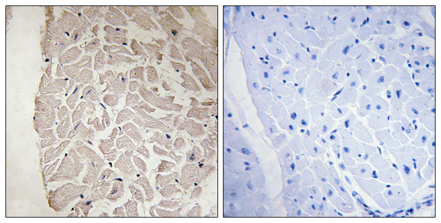 COL6A1 Antibody (OAAF02908) in Human heart cells using Immunohistochemistry