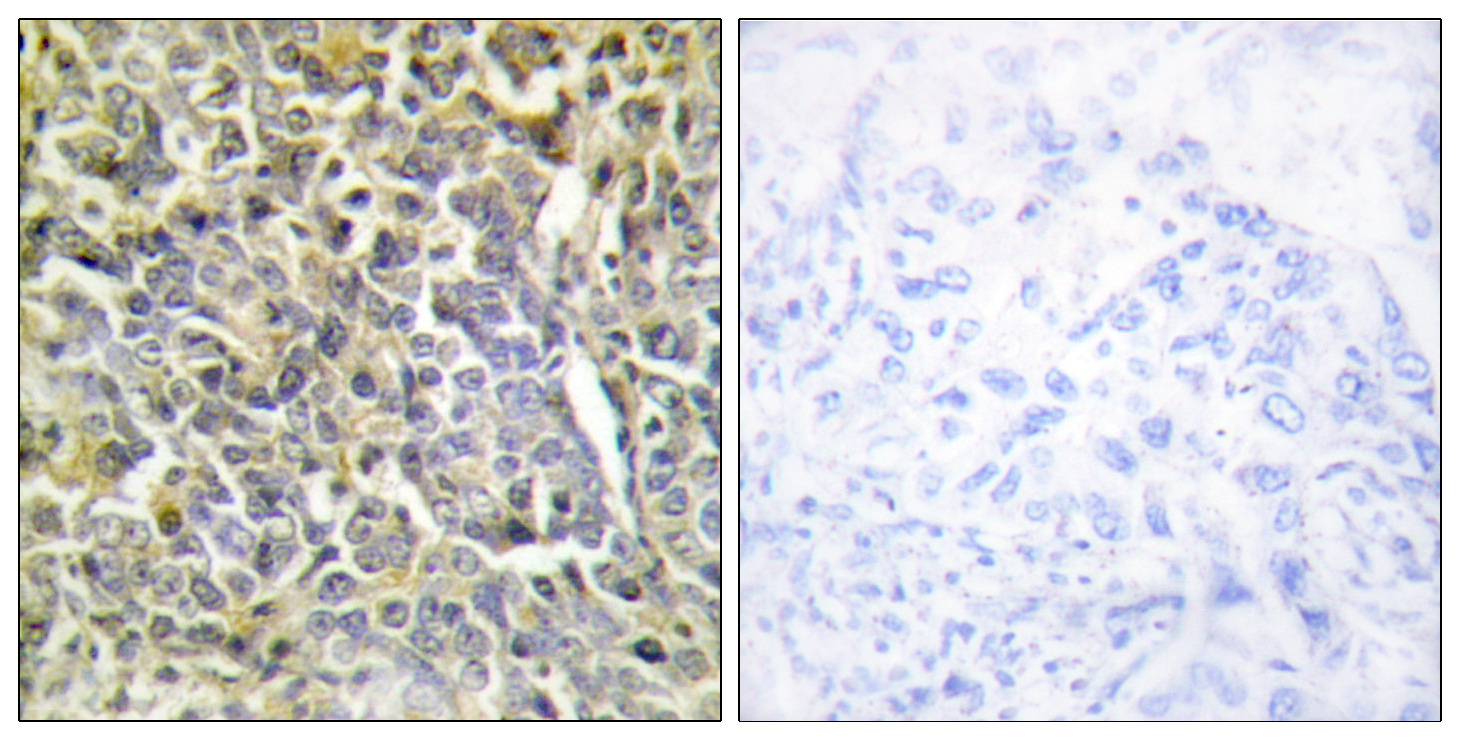 COL6A2 Antibody (OAAF02909) in Human lung carcinoma cells using Immunohistochemistry