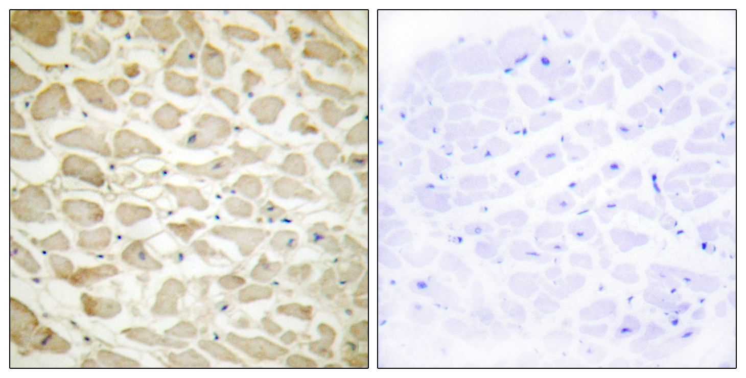COL14A1 Antibody (OAAF02918) in Human heart cells using Immunohistochemistry