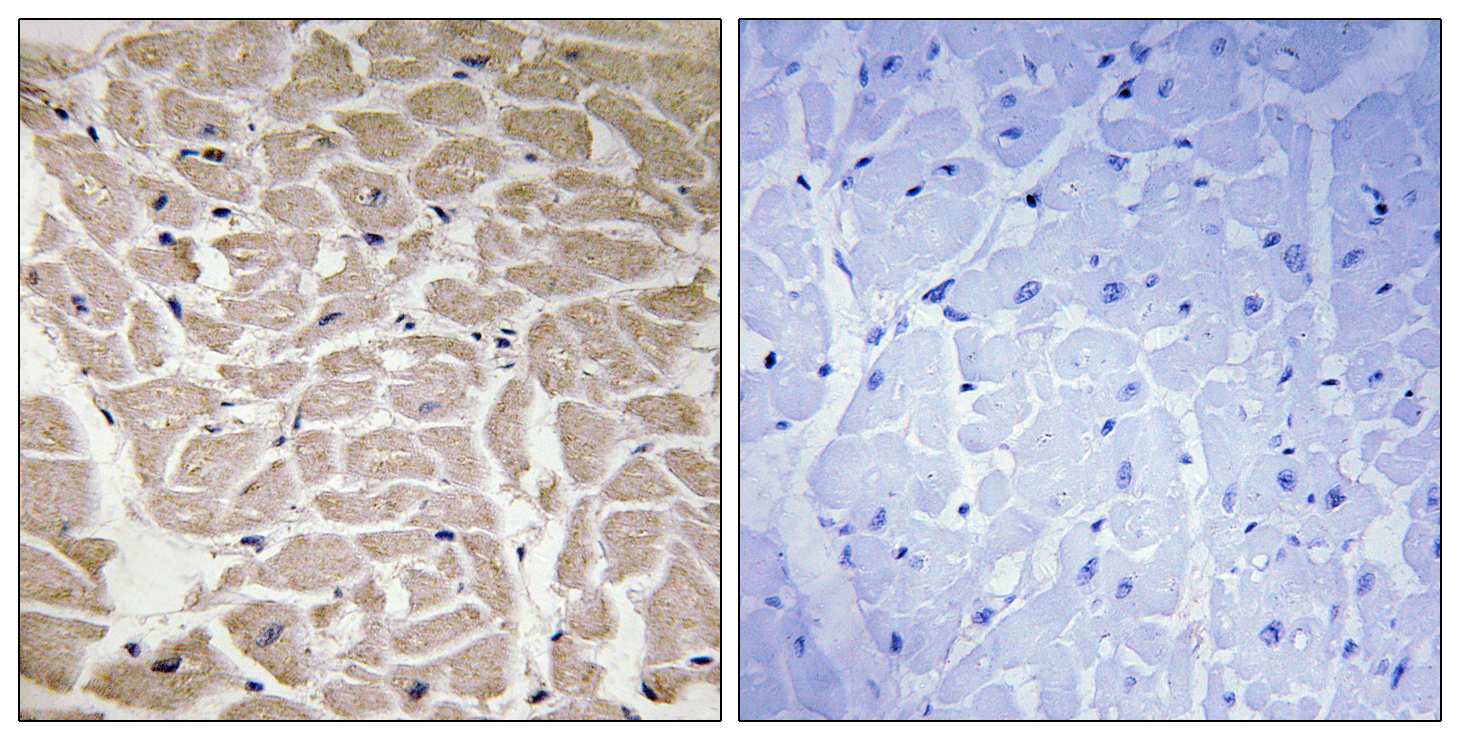 COL16A1 Antibody (OAAF02920) in Human heart cells using Immunohistochemistry