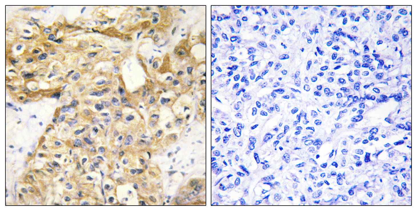 COL18A1 Antibody (OAAF02921) in Human liver carcinoma cells using Immunohistochemistry