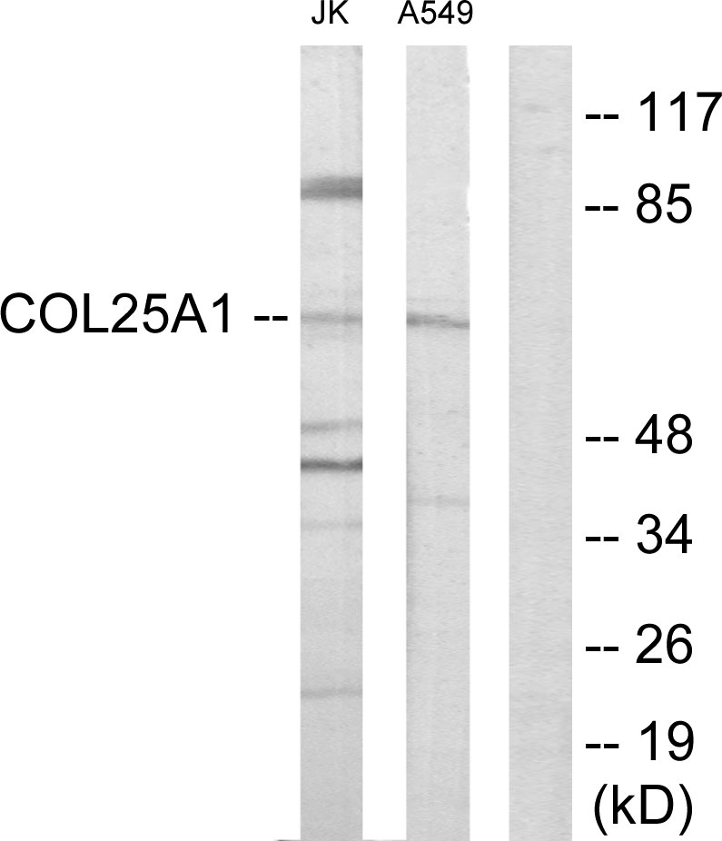 COL25A1 Antibody (OAAF02925) in Jurkat, A549 cells using Western Blot