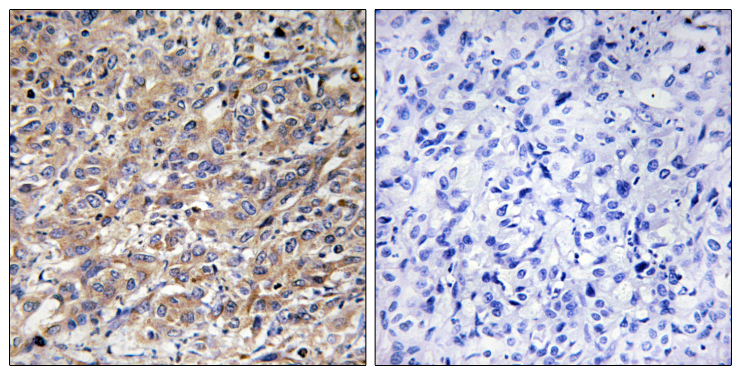 COX17 Antibody (OAAF02928) in Human liver carcinoma cells using Immunohistochemistry
