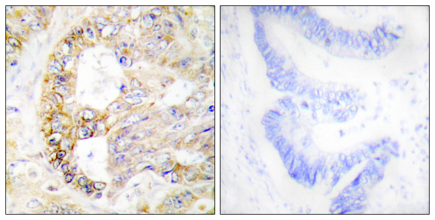 COX4I1 Antibody (OAAF02930) in Human colon carcinoma cells using Immunohistochemistry