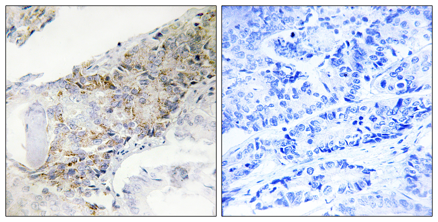 COX5B Antibody (OAAF02933) in Human breast carcinoma cells using Immunohistochemistry