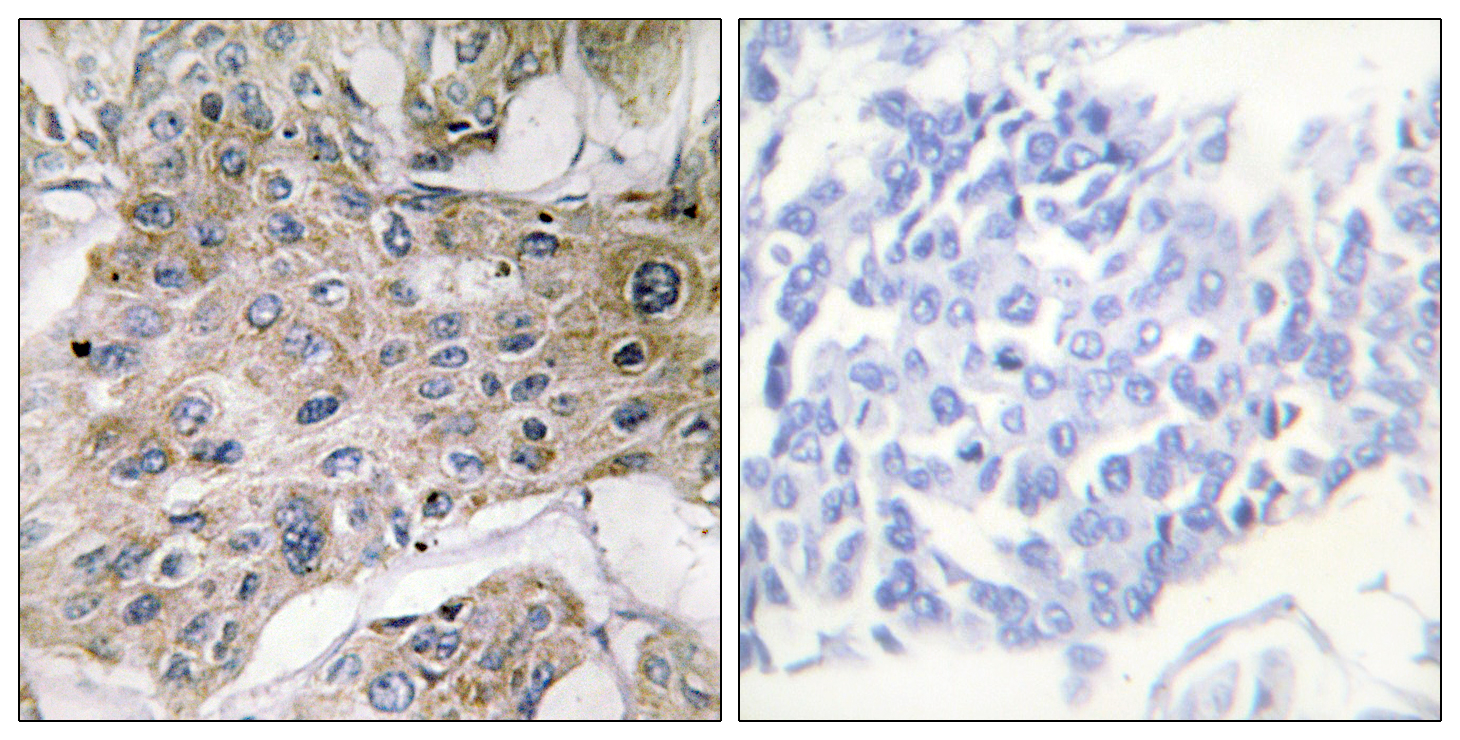 COX7A2P2 Antibody (OAAF02935) in Human breast carcinoma cells using Immunohistochemistry