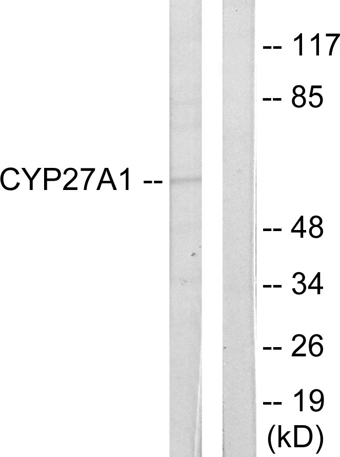 CYP27A1 Antibody (OAAF02944) in HeLa cells using Western Blot