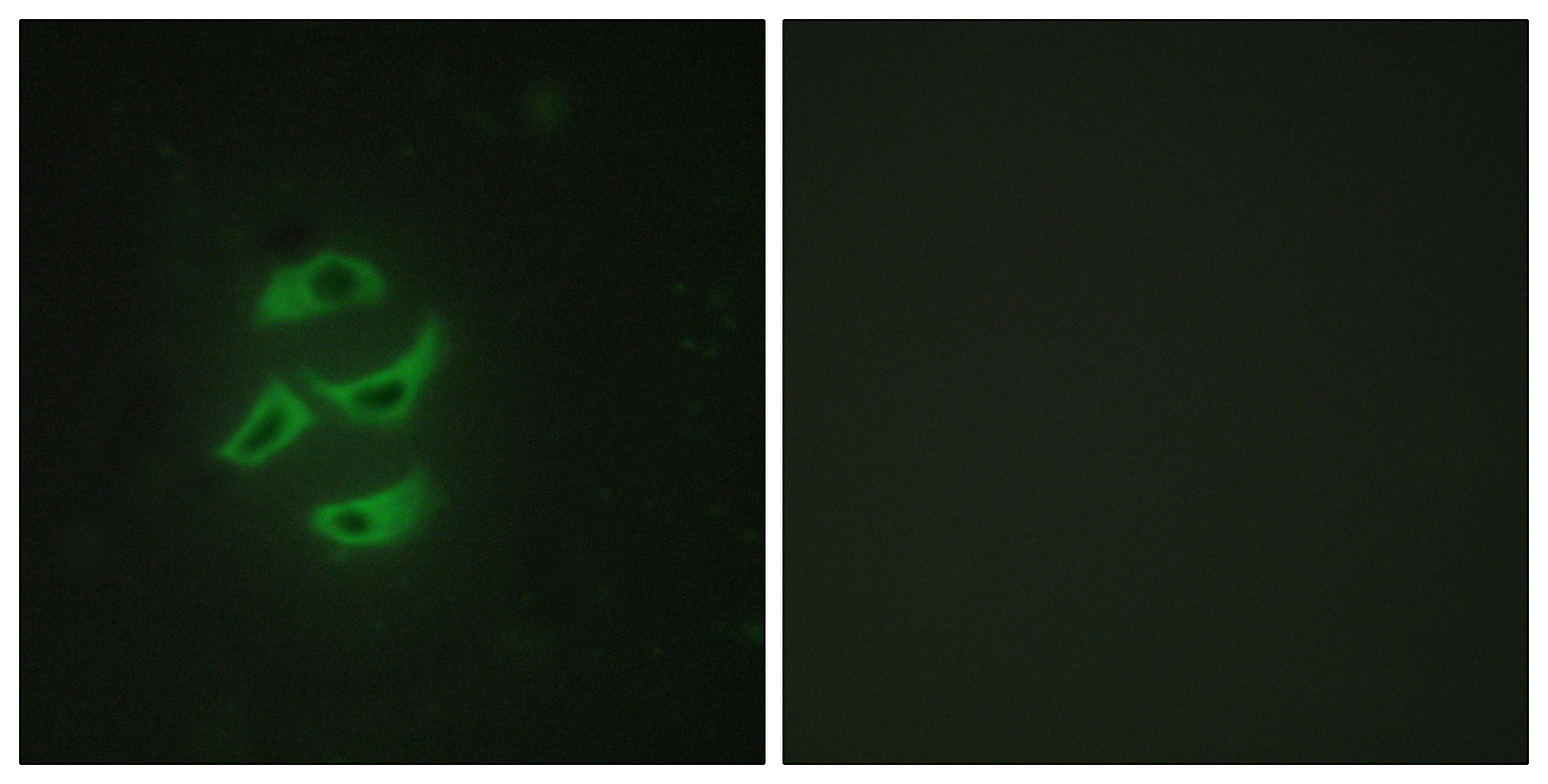 CYP2J2 Antibody (OAAF02953) in HepG2 cells using Immunofluorescence