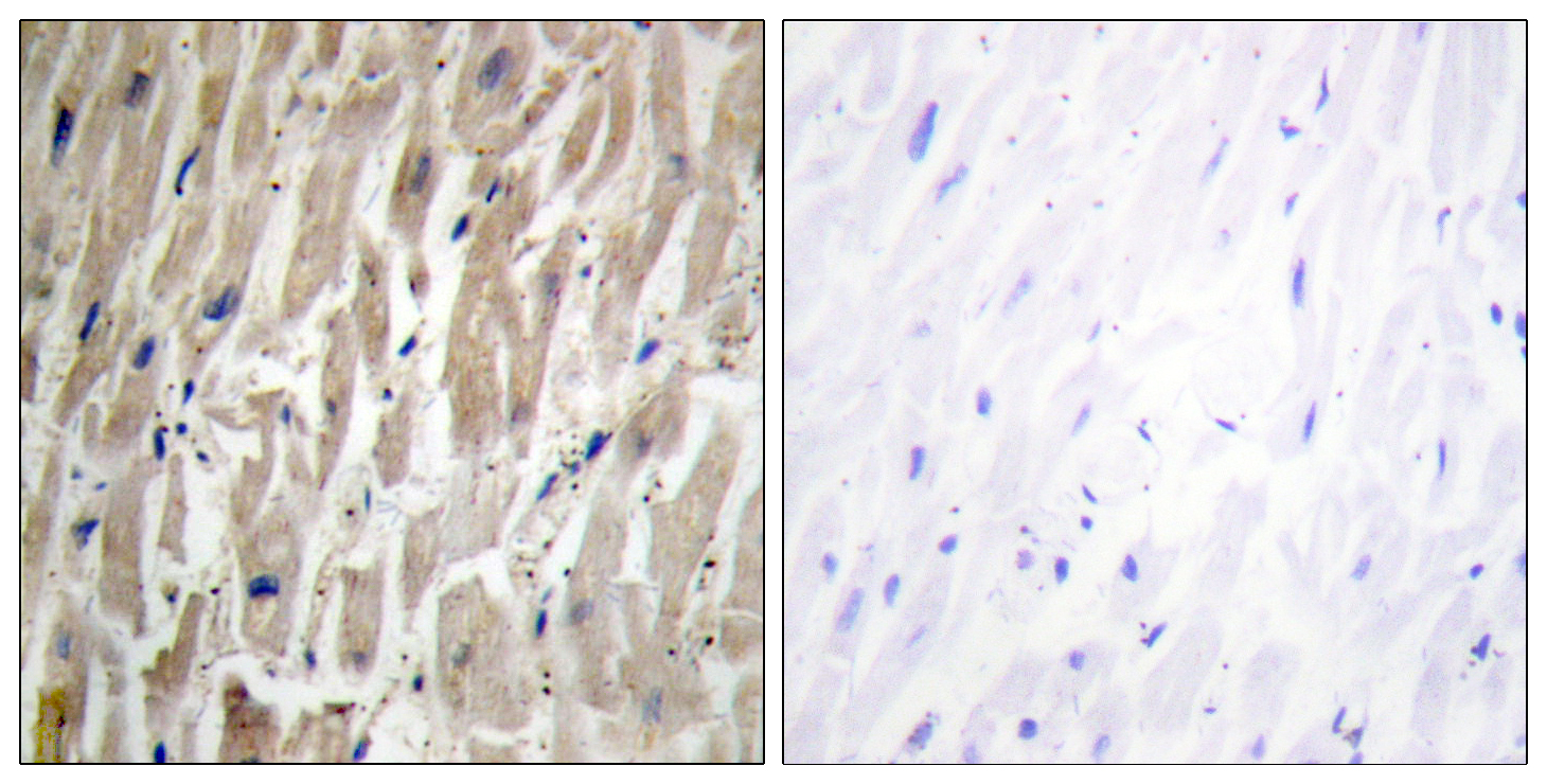 CYP2J2 Antibody (OAAF02953) in Human heart cells using Immunohistochemistry