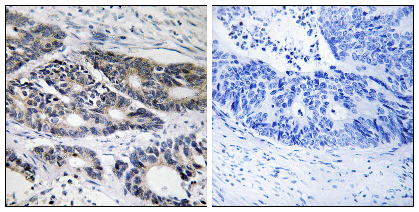 CYP2R1 Antibody (OAAF02954) in Human colon carcinoma cells using Immunohistochemistry