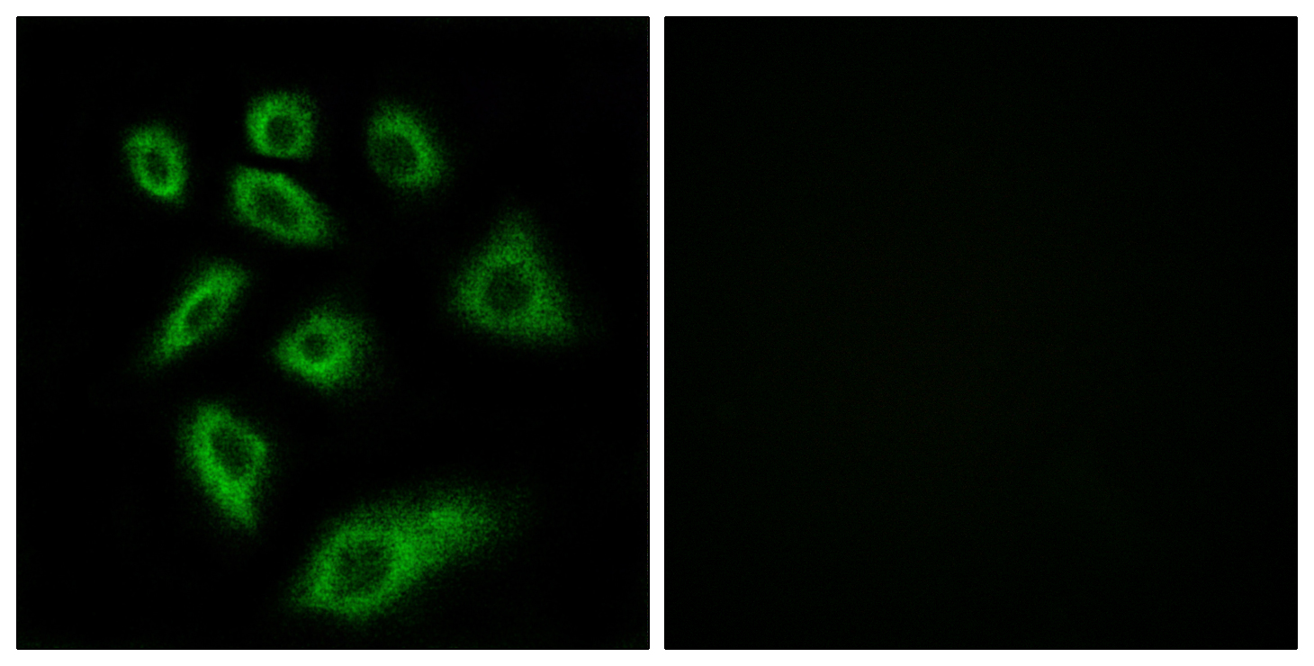 CYP2W1 Antibody (OAAF02957) in HuvEc cells using Immunofluorescence