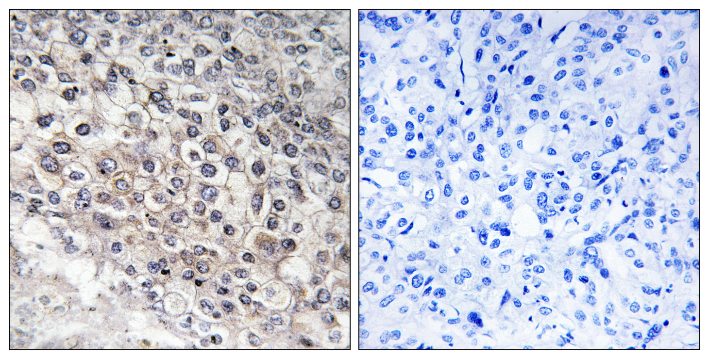CYP2W1 Antibody (OAAF02957) in Human liver carcinoma cells using Immunohistochemistry