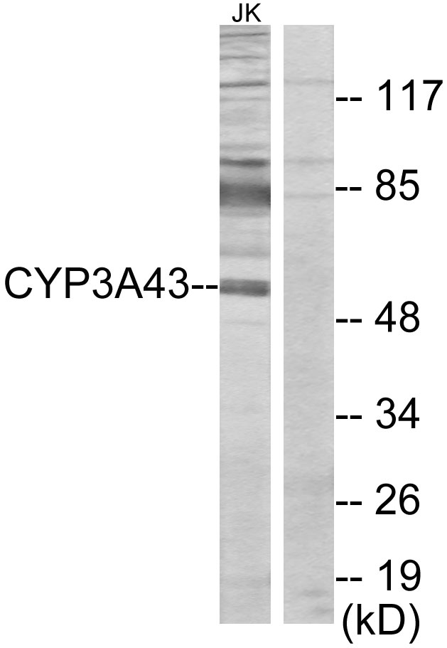 CYP3A43 Antibody (OAAF02958) in Jurkat cells using Western Blot