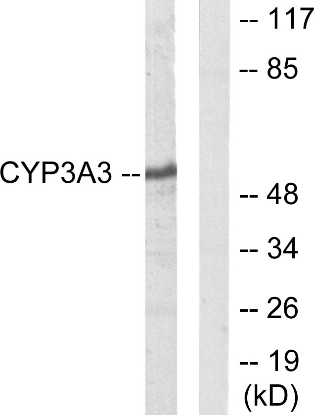CYP3A4 Antibody (OAAF02960) in Jurkat cells using Western Blot