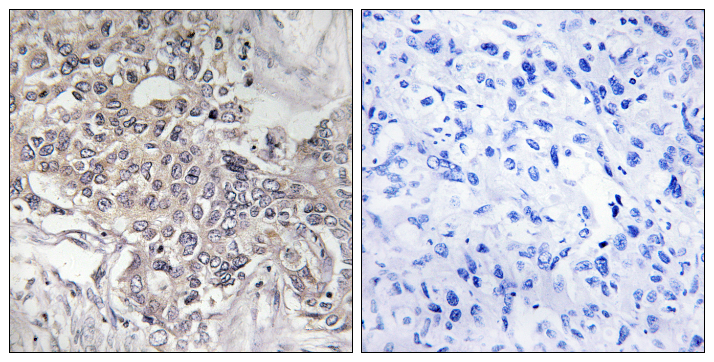 CYP4Z1 Antibody (OAAF02966) in Human liver carcinoma cells using Immunohistochemistry