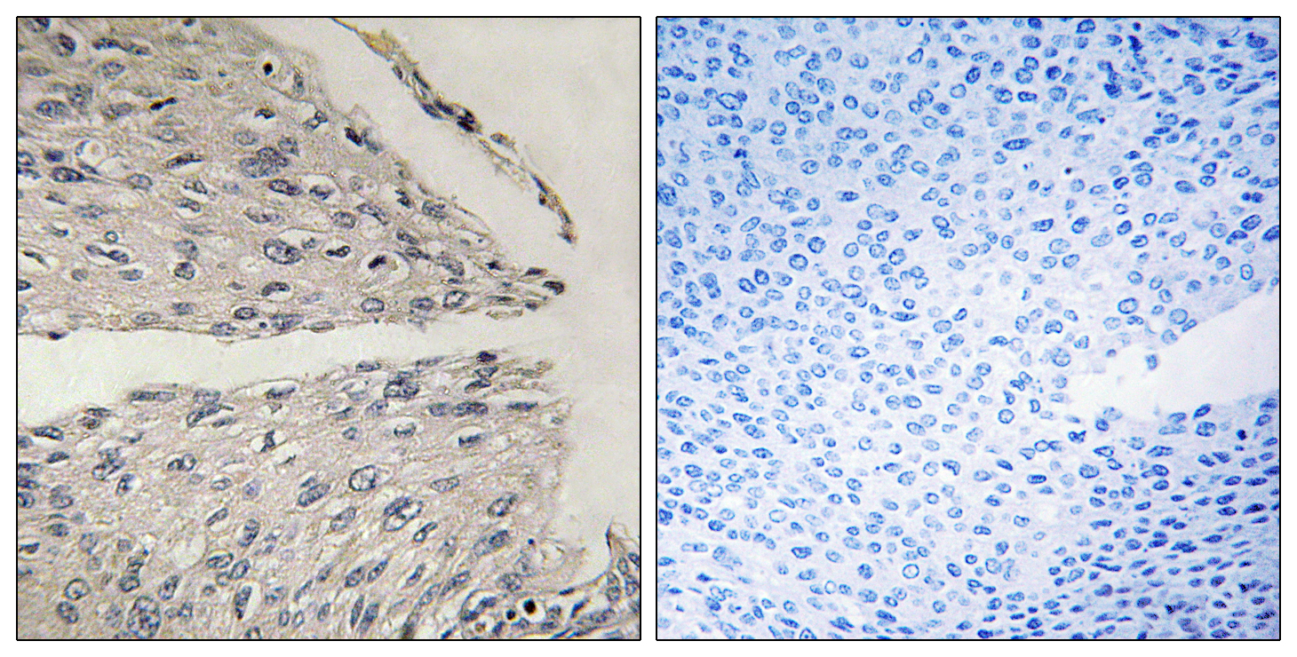 CIDEB Antibody (OAAF03004) in Human cervix carcinoma cells using Immunohistochemistry