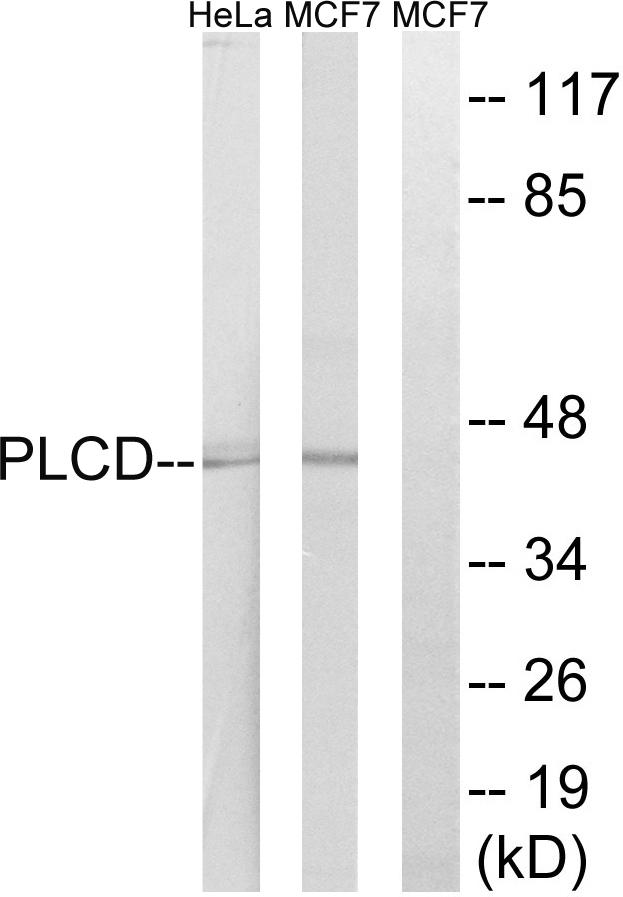AGPAT4 Antibody (OAAF03087) in HeLa, MCF-7 cells using Western Blot