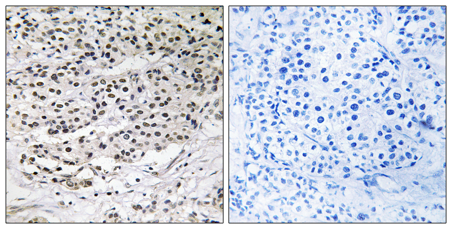 AZI1 Antibody (OAAF03167) in Human breast carcinoma cells using Immunohistochemistry