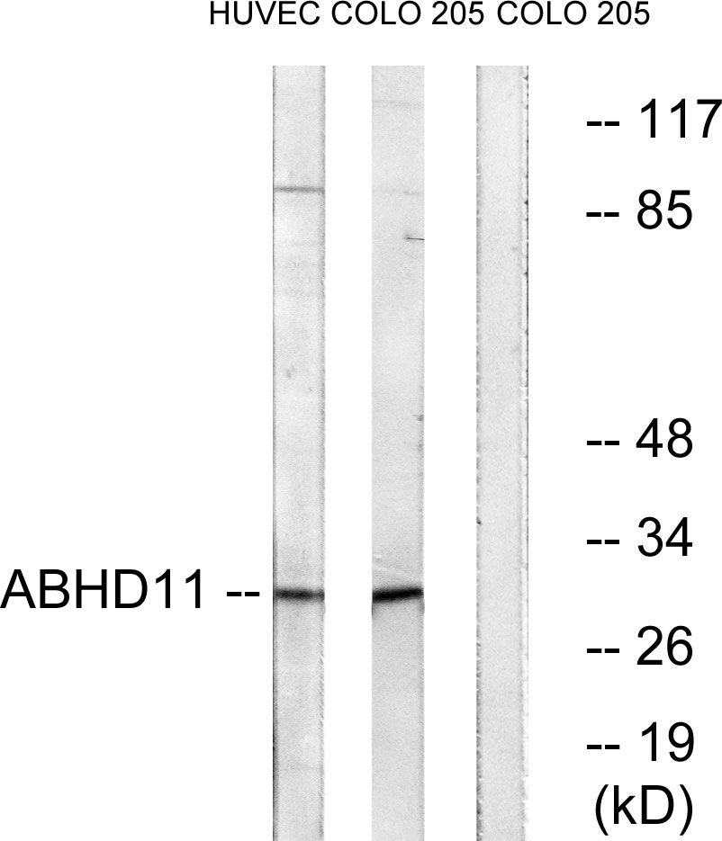 ABHD11 Antibody (OAAF03206) in HUVEC, COLO cells using Western Blot