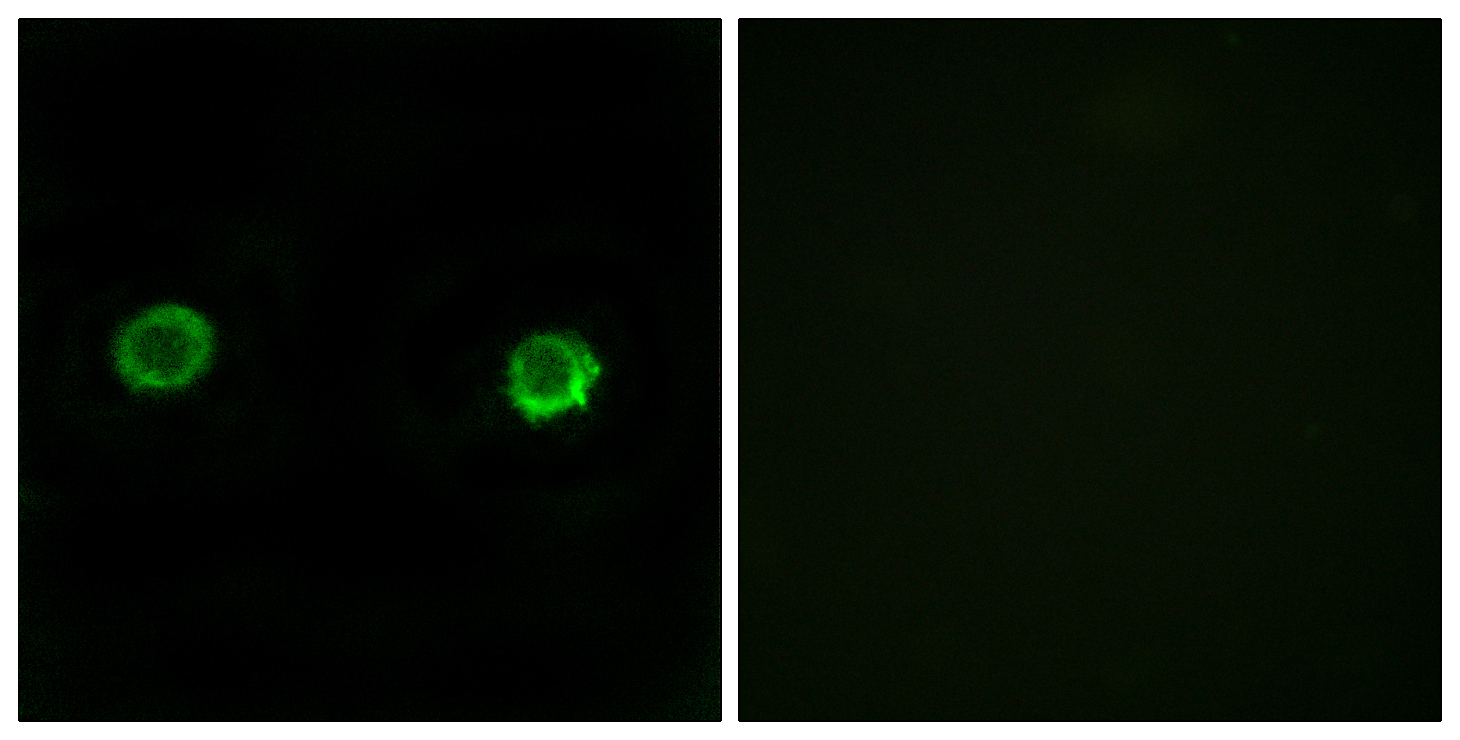 ABHD2 Antibody (OAAF03211) in MCF-7 cells using Immunofluorescence