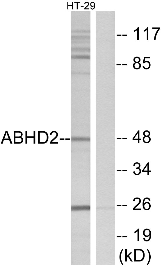 ABHD2 Antibody (OAAF03211) in HT-29 cells using Western Blot