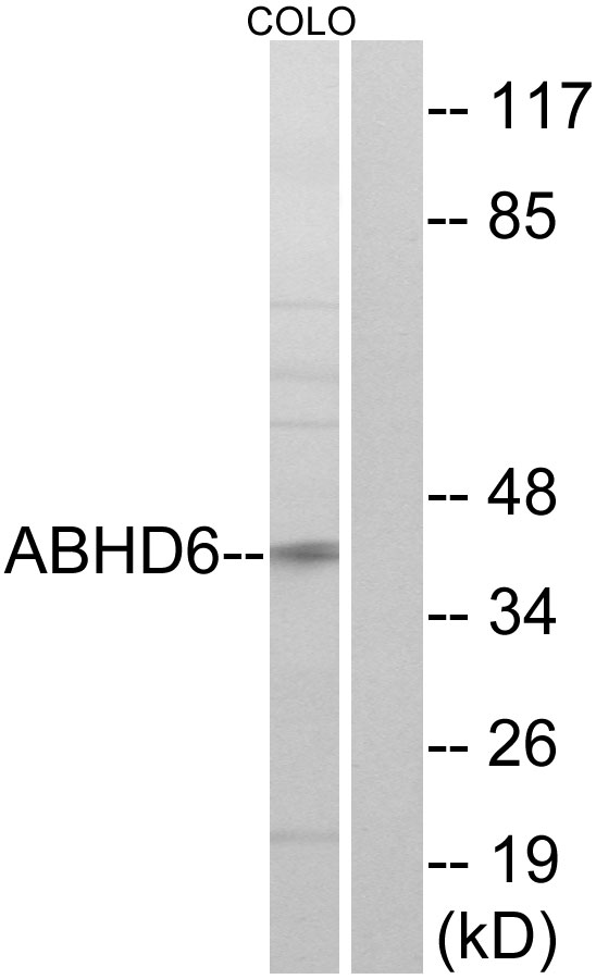 ABHD6 Antibody (OAAF03213) in COLO cells using Western Blot