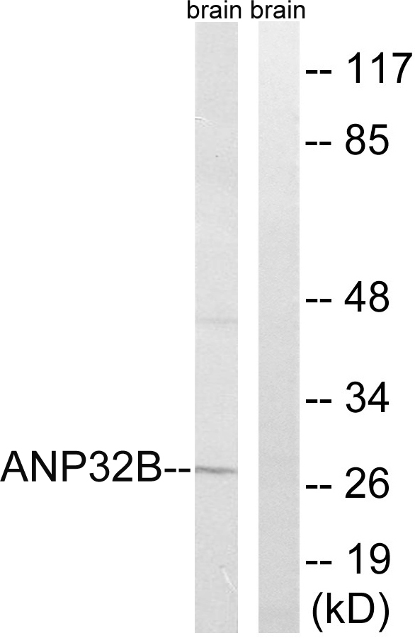 ANP32B Antibody (OAAF03221) in Rat brain cells using Western Blot