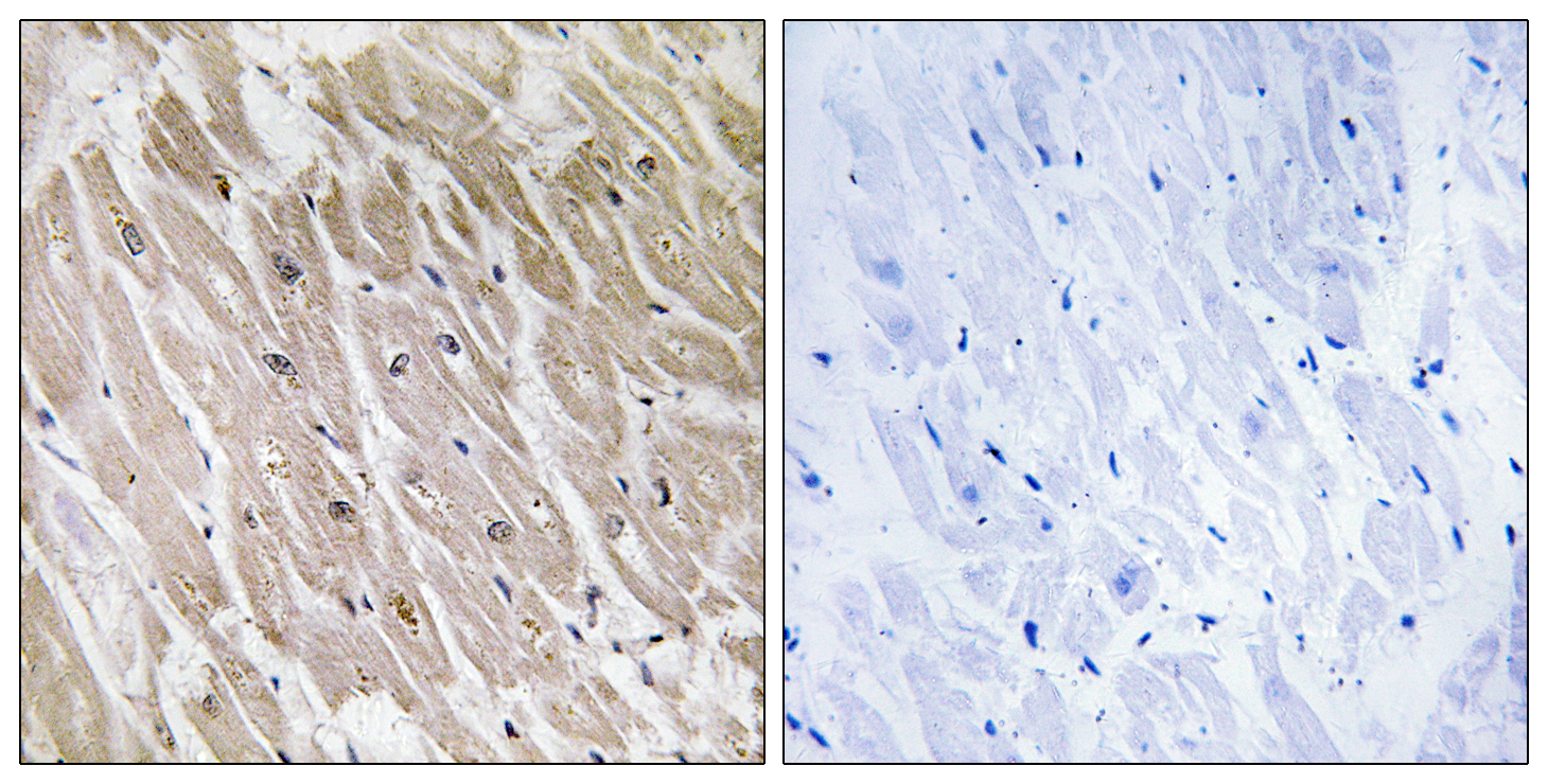 ACAD10 Antibody (OAAF03223) in Human heart cells using Immunohistochemistry