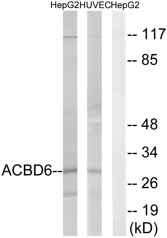 ACBD6 Antibody (OAAF03225) in HepG2, HUVEC cells using Western Blot