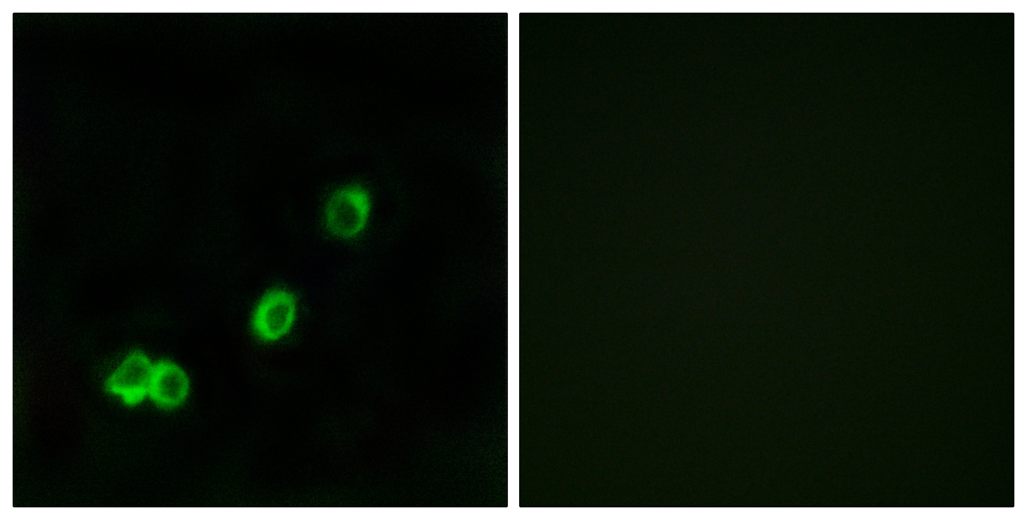 ACOT1 Antibody (OAAF03226) in MCF-7 cells using Immunofluorescence
