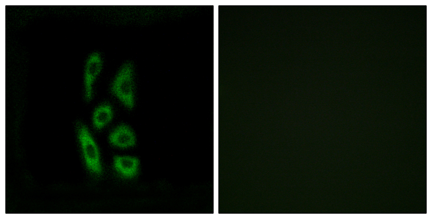 ACOT12 Antibody (OAAF03227) in A549 cells using Immunofluorescence
