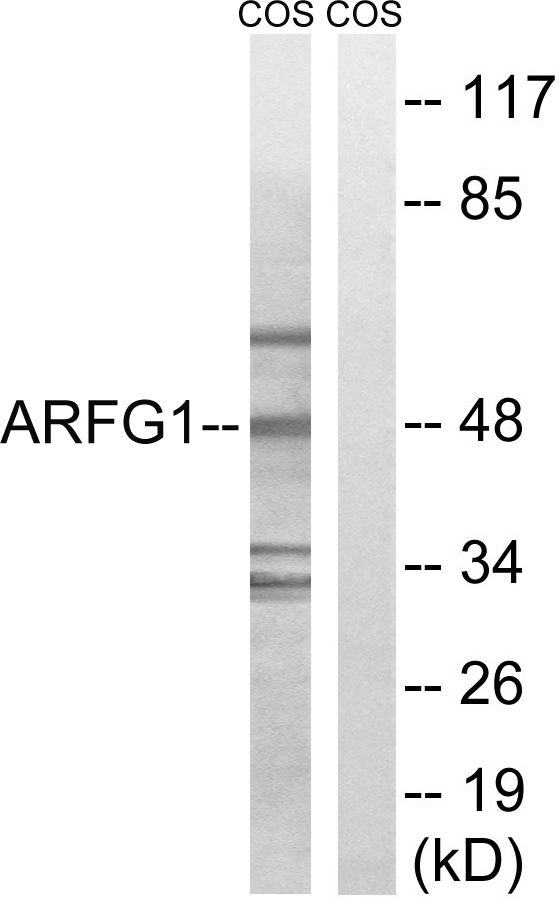 ARFGAP1 Antibody (OAAF03244) in HeLa, MCF-7, COLO cells using Western Blot