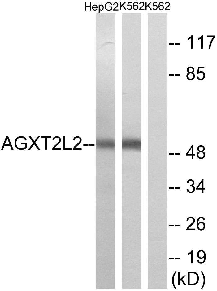 AGXT2L2 Antibody (OAAF03247) in HepG2, K562 cells using Western Blot