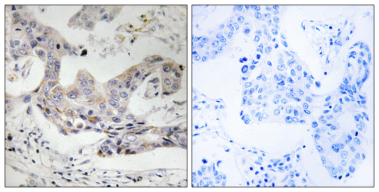ALDH3B1 Antibody (OAAF03251) in Human breast carcinoma cells using Immunohistochemistry