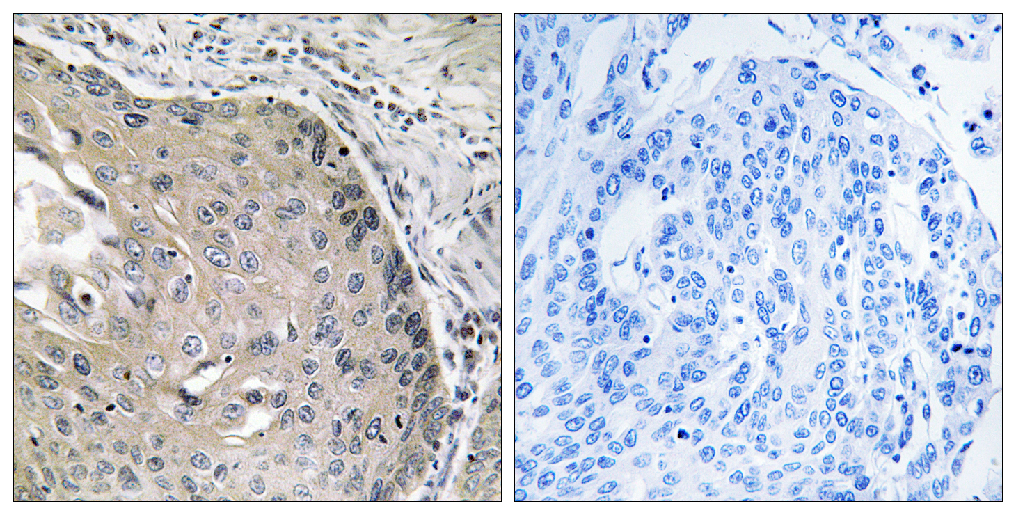 AOX1 Antibody (OAAF03253) in Human lung carcinoma cells using Immunohistochemistry